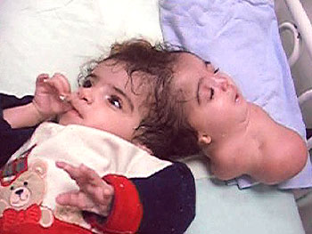 Manar Maged conjoined twins