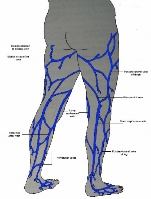 Laser Treatment For Scars On Legs  of Icd 9 code for varicose veins in legs