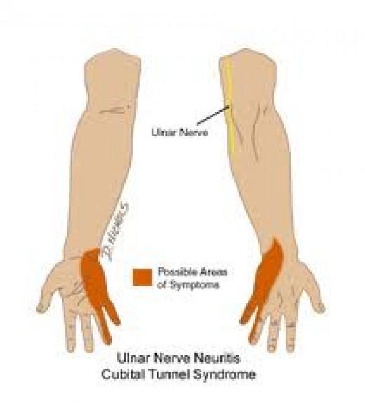 Upper Limb Tension Test Radial Nerve Bias  YouTube