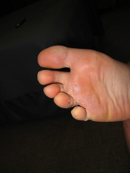 Bad Case of Athlete's Foot