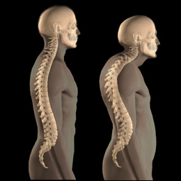 Spinal curvature due to osteoporosis