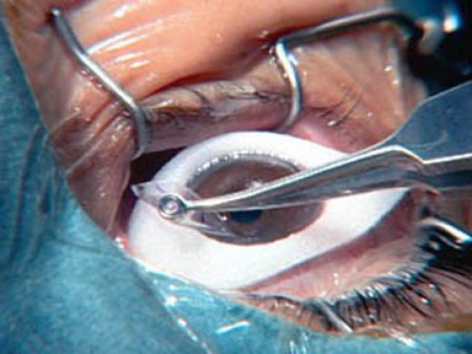Laser Eye Surgery: A More and More Popular Procedure