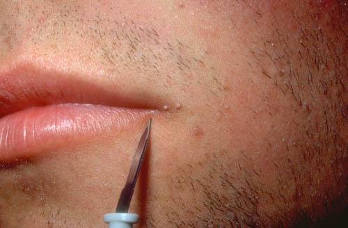 Facial Warts