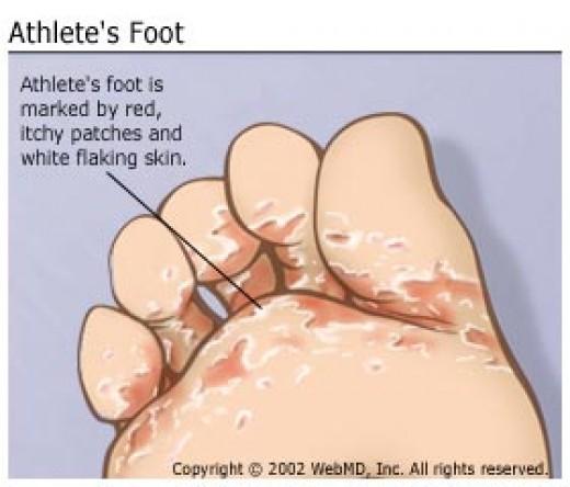 medicatie voetschimmel