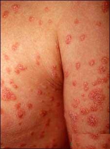 Psoriasis on skin