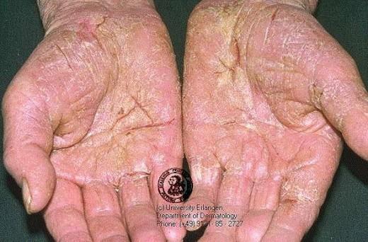 Eczema on hands