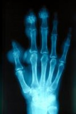 Plain radiograph showing chronic tophaceous gouty arthritis in the hands.