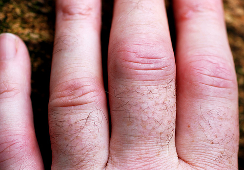 Swollen fingers due to rheumatoid arthritis