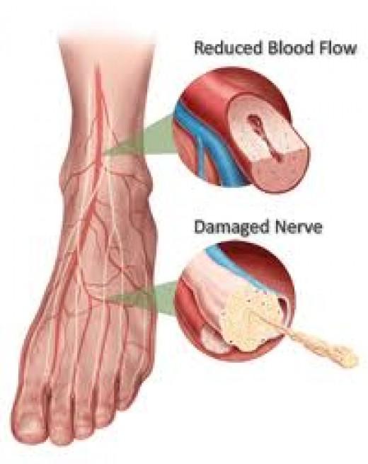 Diabetic Foot Neuropathy