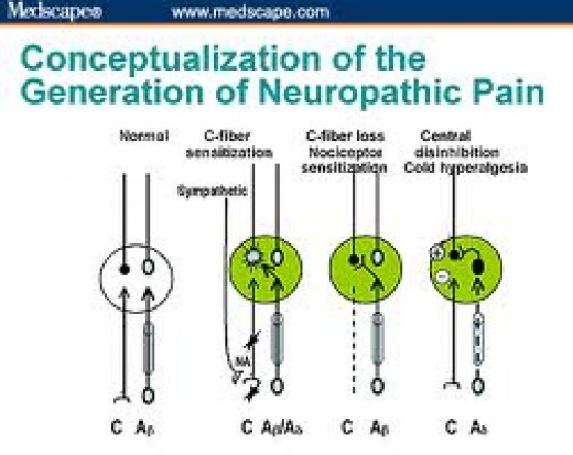 Generation of neuropathic pain chart