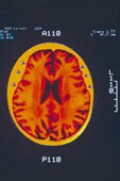Alzheimer's is a dreaded disease and there was no test to detect it, until now!