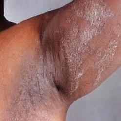 Yeast Infection On Skin