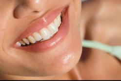 Maintaining Your Pearly Whites After A Professional Teeth Bleaching