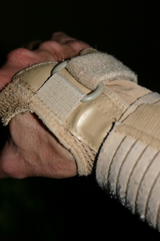 Use braces and supports for weaknesses to prevent injury.