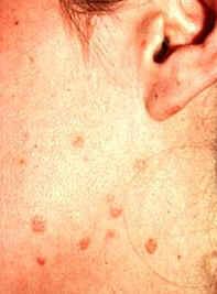 Flat Warts on Body