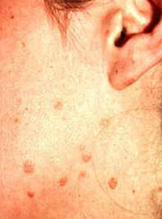 Flat Warts on Body