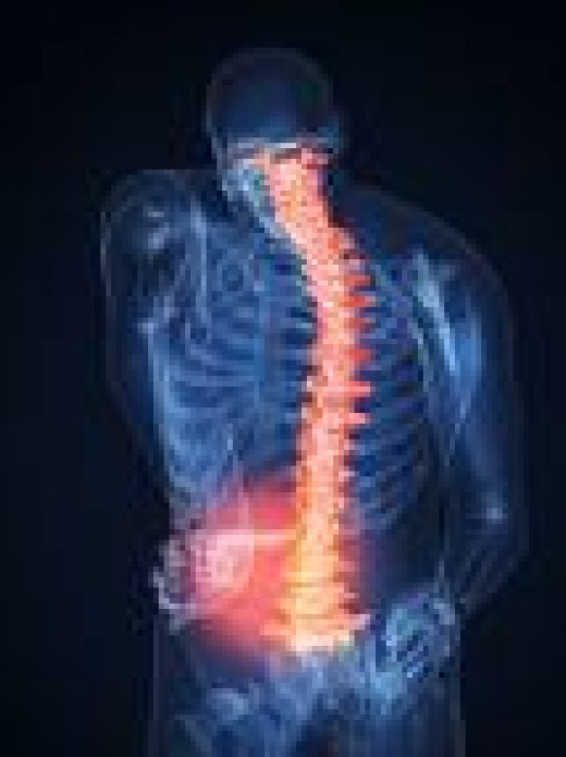 Photo Courtesy of prolog.org. X-ray shows how back pain can radiate up and down your spine.