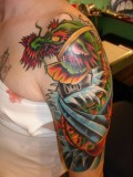 Tattoo Removal Methods and Side-Effects - Laser Tattoo Removal Surgery and Clinics