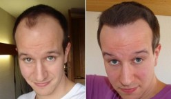 After Hair Transplant Surgery :Things To Take Into Consideration