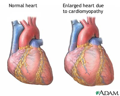 Don't put a strain on your heart!