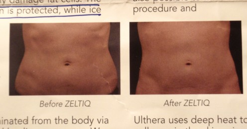 A before and after image from a dermatologist's brochure.