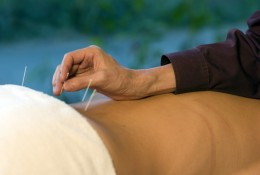 Acupuncture - enjoy it or learn how to administer it while in Chiang Mai