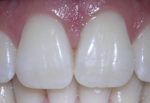 Photo by: http://commons.wikimedia.org/wiki/File:06-10-06centralincisors.jpg