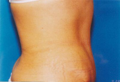 After Full Tummy Tuck