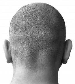 Some people prefer the no-hair look.  But for those that don't, there are several hair loss remedies out there.
