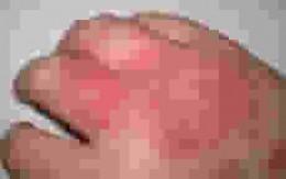 Eczema picture (atopy)
