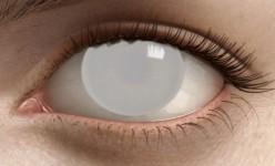 Blind's Eye