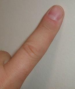 Image Source Location: http://upload.wikimedia.org/wikipedia/commons/thumb/c/cd/Finger.agr.jpg/299px-Finger.agr.jpg