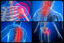 3-6 million people in America alone suffer from fibromyalgia