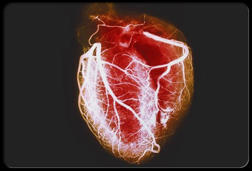 Patients with Myocardial Infarction also stand the risk