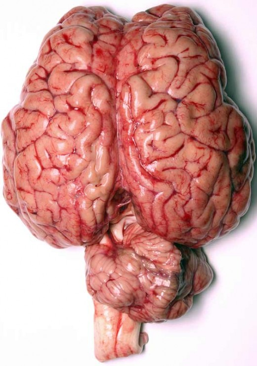 The brain is one of the main target organs of Insulin.