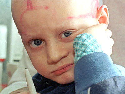 Five-year-old Alec Zhloba, suffering from leukemia, looks on in a children cancer unit at a hospital in Gomel, Belarus, in this March 19, 1996 file photo (AP Photo/Efrem Lukstaky).