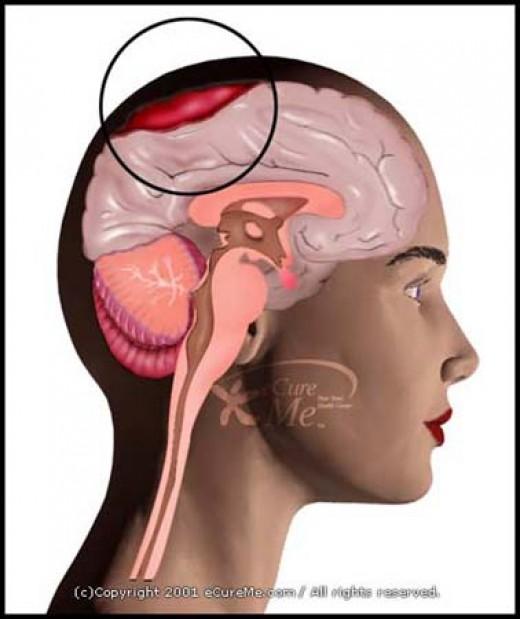 A predisposing factor of Non-ketonic Hyperglycemic Hyperosmolar Coma