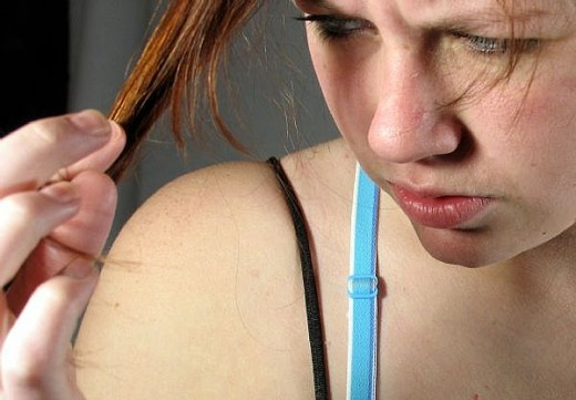 Hair Loss in Women