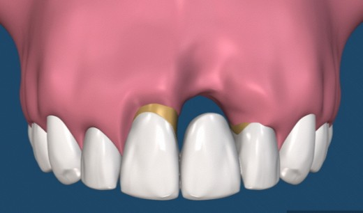 Bridge requires preparation (grinding down) of the adjacent teeth which can result in other complications.