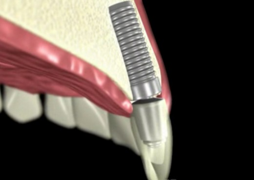 Implant preserves the jawbone and gum tissue with great cosmetic results