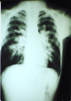Infectious diseases of the respiratory system which can easily result to Pneumonia