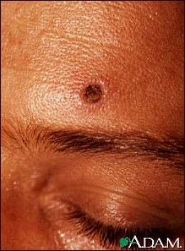 This is a skin lesion resulting from disseminated histoplasmosis. Histoplasmosis occurs most frequently as a lung infection, however it can infect the skin or become distributed (disseminated) to internal organs.