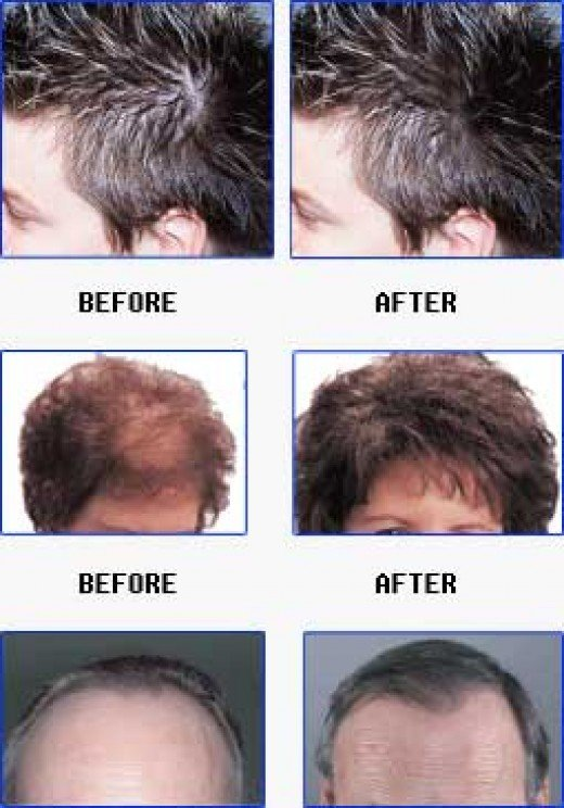 thyroid hair loss symptoms