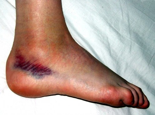 Ankle Sprain (with ecchymosis)