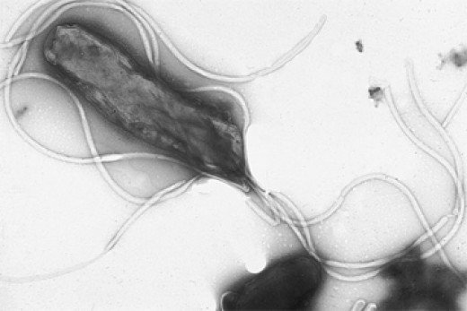 Helicobacter pylori, the cause of most stomach ulcers.