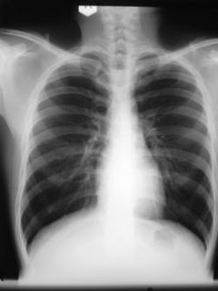 """These are """"Normal"""" Lungs (notice how clear they are)"""