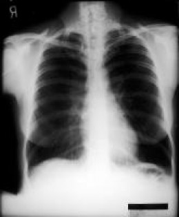 An emphysematous lung shows increased anteroposterior (AP) diameter, increased retrosternal airspace, and flattened diaphragms on posteroanterior (PA) film.