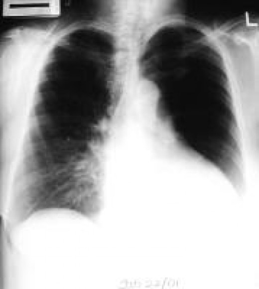 The differential diagnosis of unilateral hyperlucent lung includes pulmonary arterial hypoplasia and Swyer-James syndrome. The expiratory chest radiograph exhibits evidence of air trapping and is helpful in making the diagnosis. Swyer-James syndrome