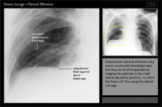 Note that the right lower lung field is clear and that the right diaphragm and lateral costophrenic angle seem sharp though it would seem peculiar that the right diaphragm should seem so high. Although pleural effusions are usually expected to blunt