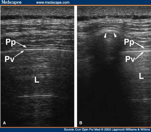 (A) Transverse image through the intercostal space. The chest wall is visualized as multiple layers of echogenicity representing muscles and fascia. The visceral and parietal pleura appear as echogenic bright lines that glide during respiration (glid